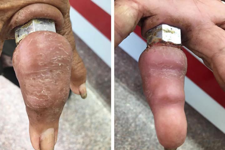 Đeo đai ốc như nhẫn, cụ bà 75 tuổi suýt bị hoại tử tay