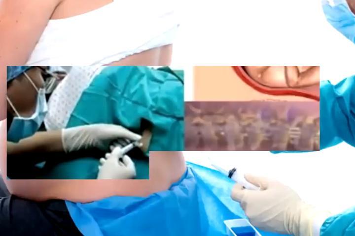 Hệ lụy khủng khiếp từ phương pháp gây tê tủy sống khi đẻ mổ